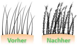 Haarfasern vorher und nachher